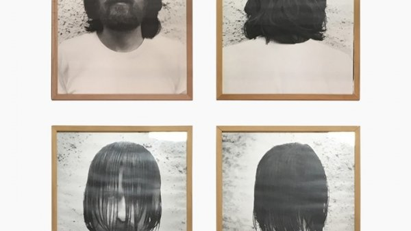 Davant/darrere-posición normal/posición anormal,1972-1992