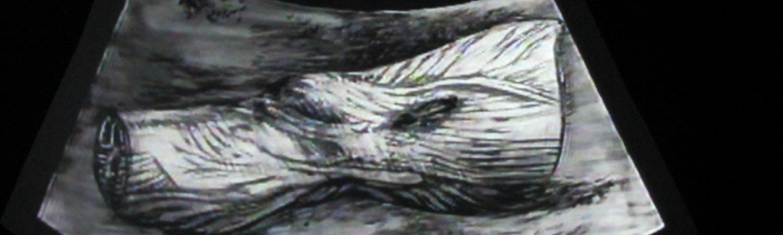 William Kentridge 'Ulisse: ECHO scan slide bottle', 1998 (imagen de la instalación)