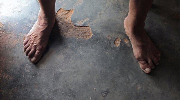 Los pies que faltan.Javier Codesal