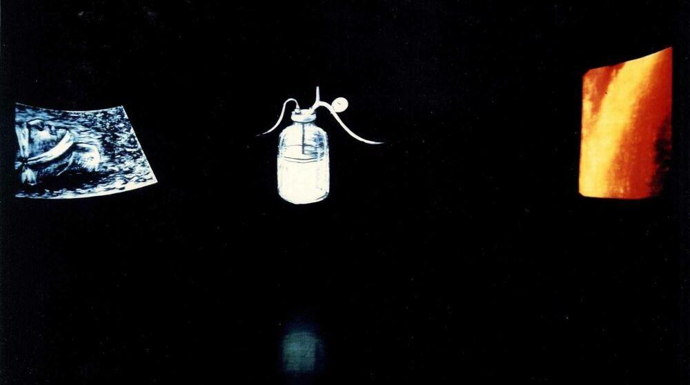 Ulises: ECOGRAFÍA escáner diapositiva botella