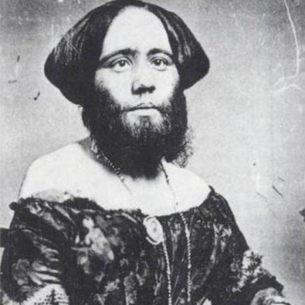 "Josphine Clofillia ""Madame Clofullia, P.T. Barnum's 'Bearded Lady of Geneva'"", 1853. Missouri History Museum, St. Louis"